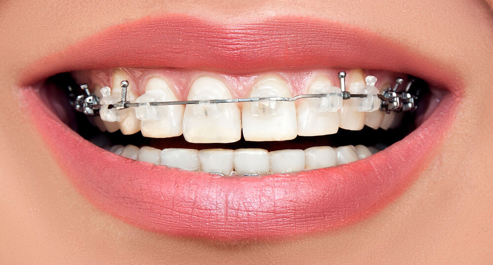 ortodoncia-brackets-barcelona-web