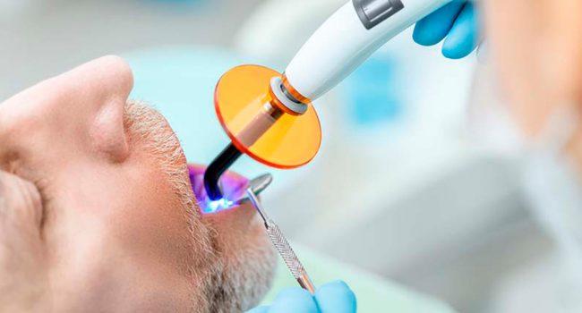 periodoncia-y-endodoncia-barcelona