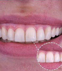 carillas-dentales-de-composite