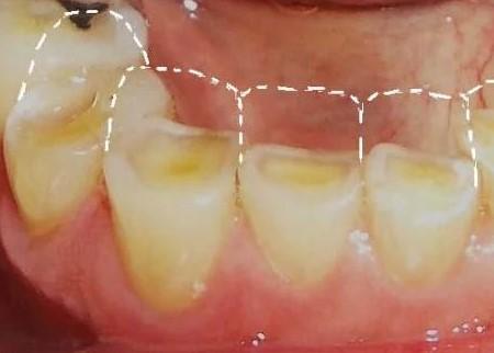 dientes-cortos-y-desgastados